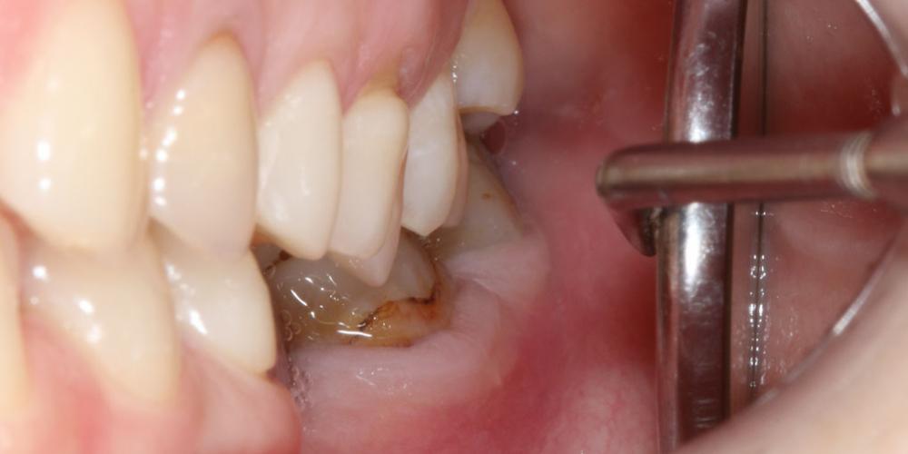 Установка 2 имплантов и 3 коронки на диоксиде циркония - фото №1