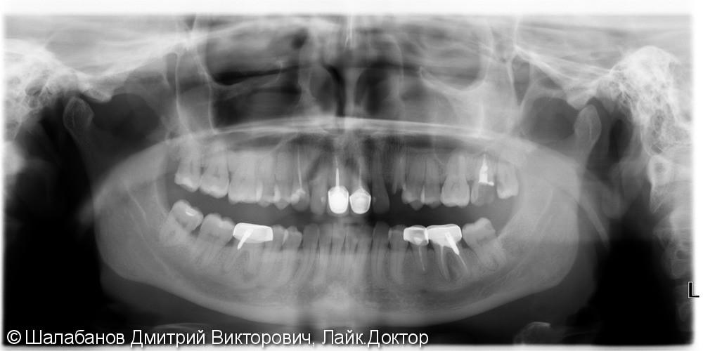 Установка цельнокерамической коронки с опорой на имплант - фото №3