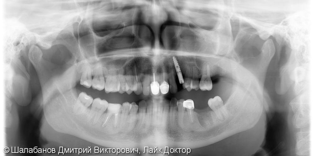Установка цельнокерамической коронки с опорой на имплант - фото №4