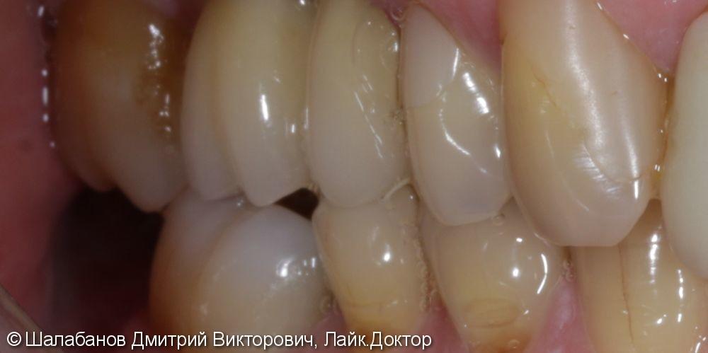 Восстановление прикуса зуба цельнокерамической коронкой - фото №1