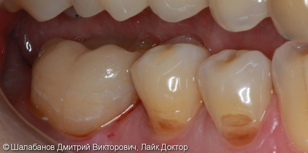 Восстановление прикуса зуба цельнокерамической коронкой - фото №6