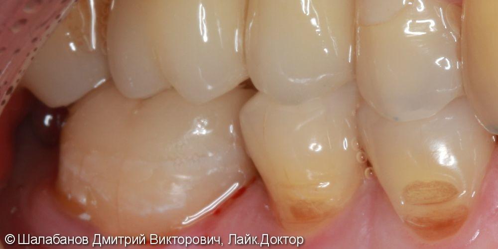 Восстановление прикуса зуба цельнокерамической коронкой - фото №7
