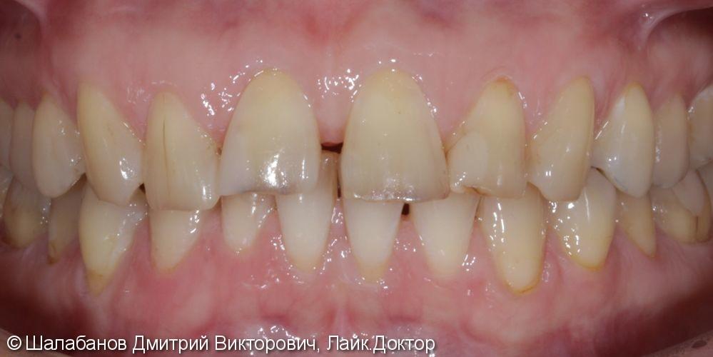 Эстетическая керамическая реставрация на верхние фронтальные зубы - фото №1