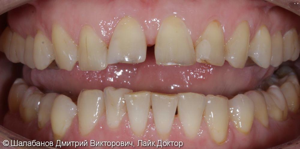 Эстетическая керамическая реставрация на верхние фронтальные зубы - фото №2