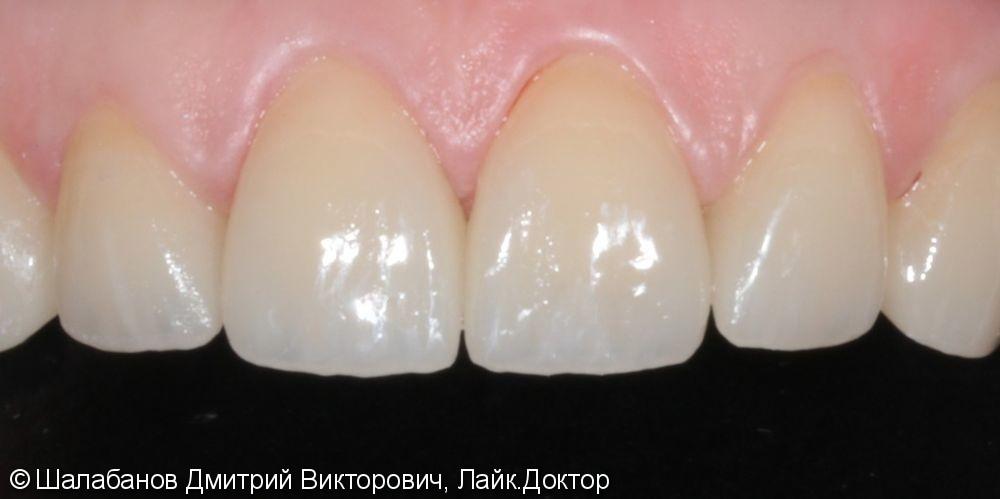 Эстетическая керамическая реставрация на верхние фронтальные зубы - фото №4