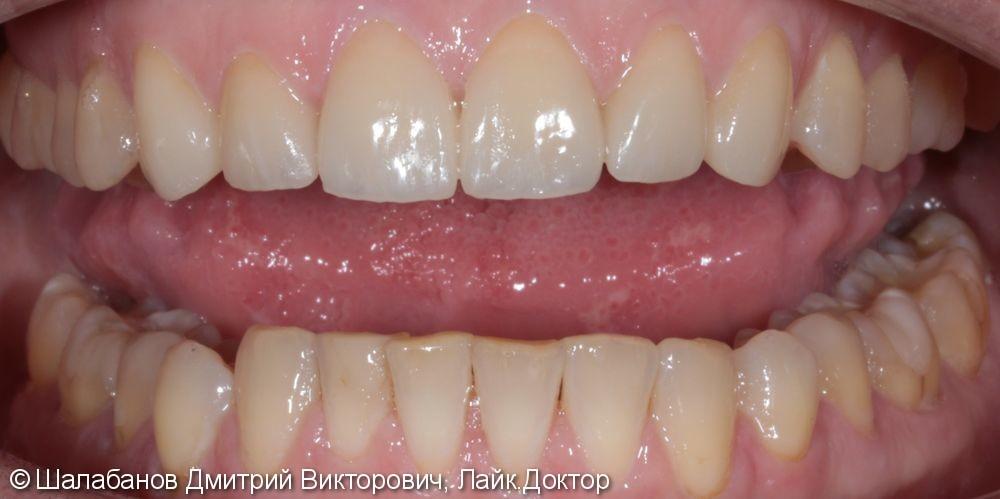 Эстетическая керамическая реставрация на верхние фронтальные зубы - фото №5