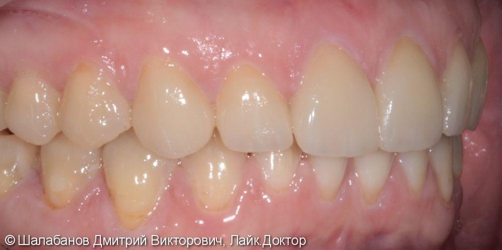 Эстетическая керамическая реставрация на верхние фронтальные зубы - фото №6