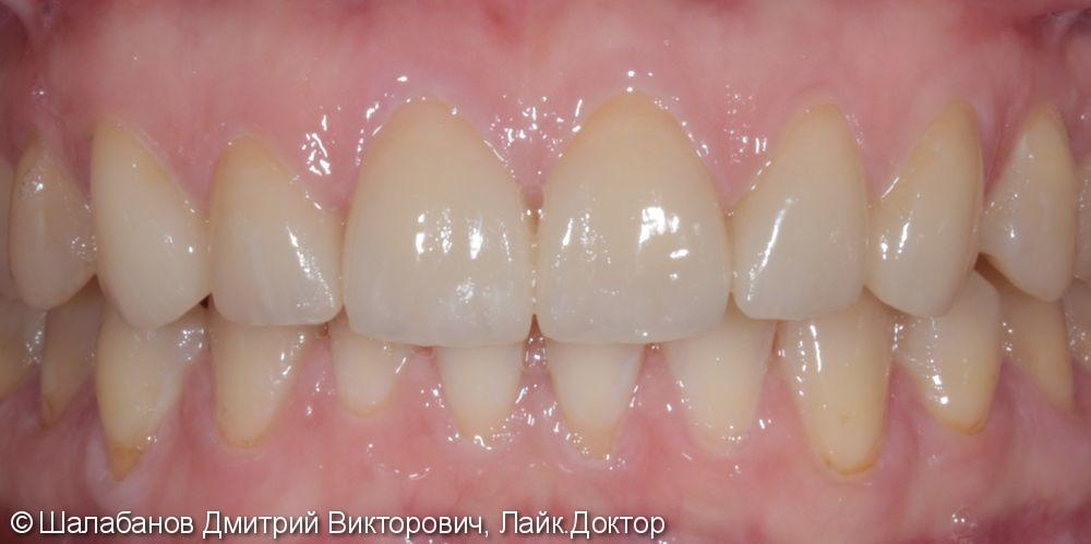 Эстетическая керамическая реставрация на верхние фронтальные зубы - фото №7