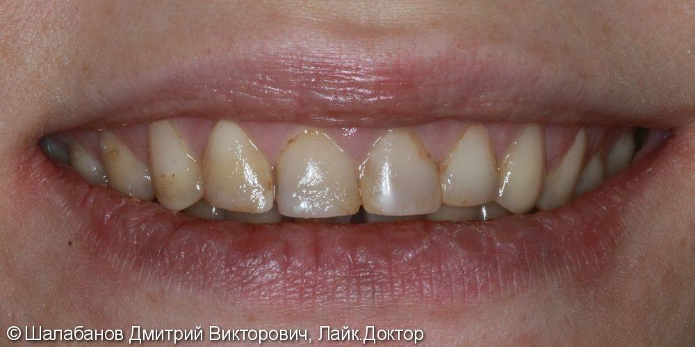 Эстетическая реставрация зубов - фото №1