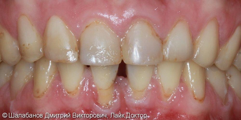 Эстетическая реставрация зубов - фото №2