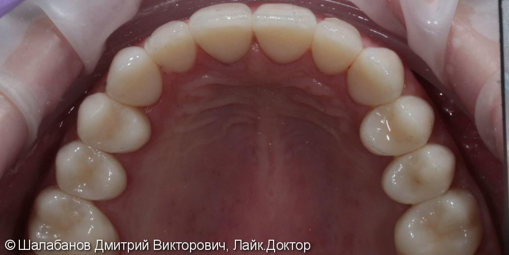 Эстетическая реставрация зубов - фото №7