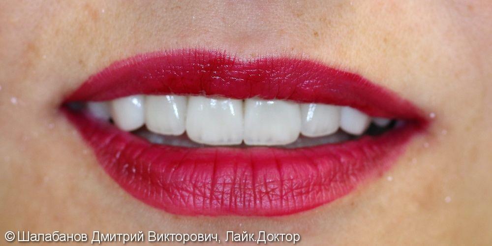 Эстетическая реставрация зубов - фото №10