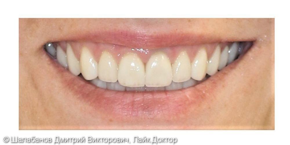 Эстетическая реставрация зубов - фото №11