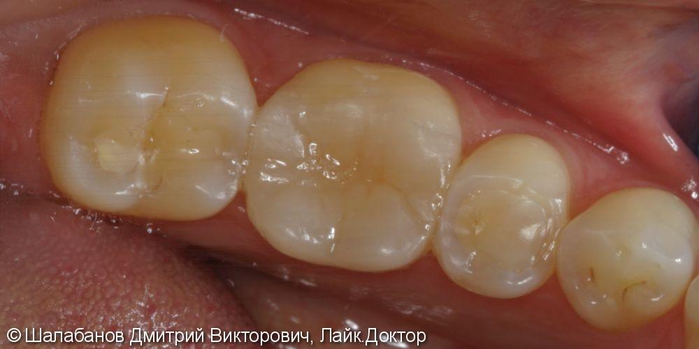 Реставрация зубов цельнокерамическими микропротезами - фото №5