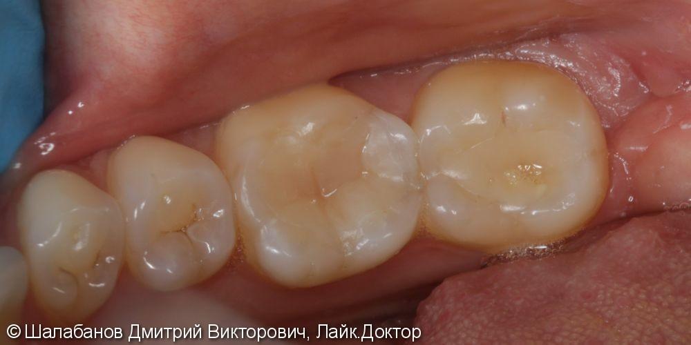 Реставрация зубов цельнокерамическими микропротезами - фото №6