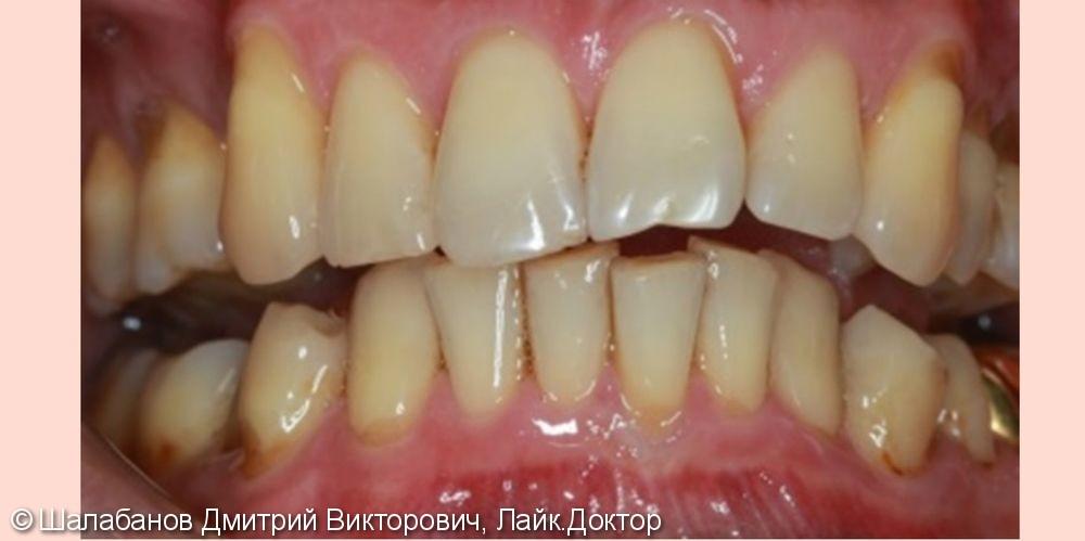 Исправление прикуса с установкой коронок на импланты и зубы - фото №1