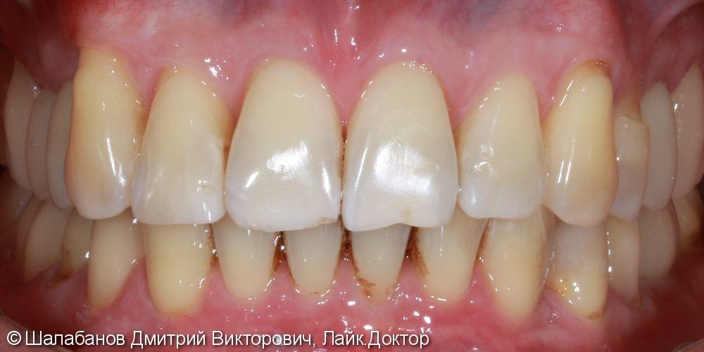 Исправление прикуса с установкой коронок на импланты и зубы - фото №12