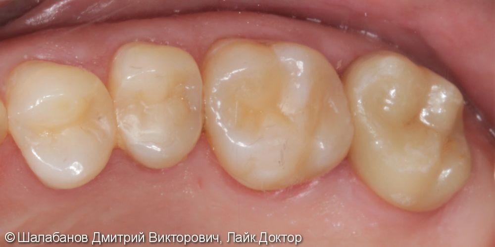Восстановление зуба с использованием технологии Cerec - фото №6
