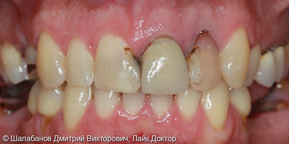 Восстановление зубного ряда при значительной потере зубов - фото №1