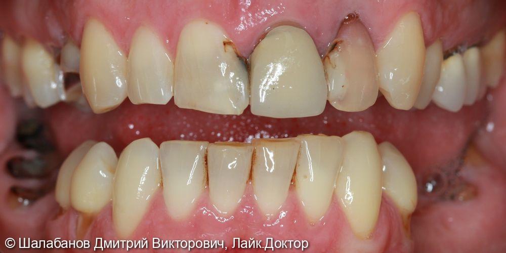Восстановление зубного ряда при значительной потере зубов - фото №2