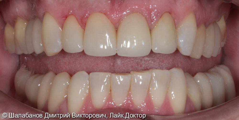 Восстановление зубного ряда при значительной потере зубов - фото №6