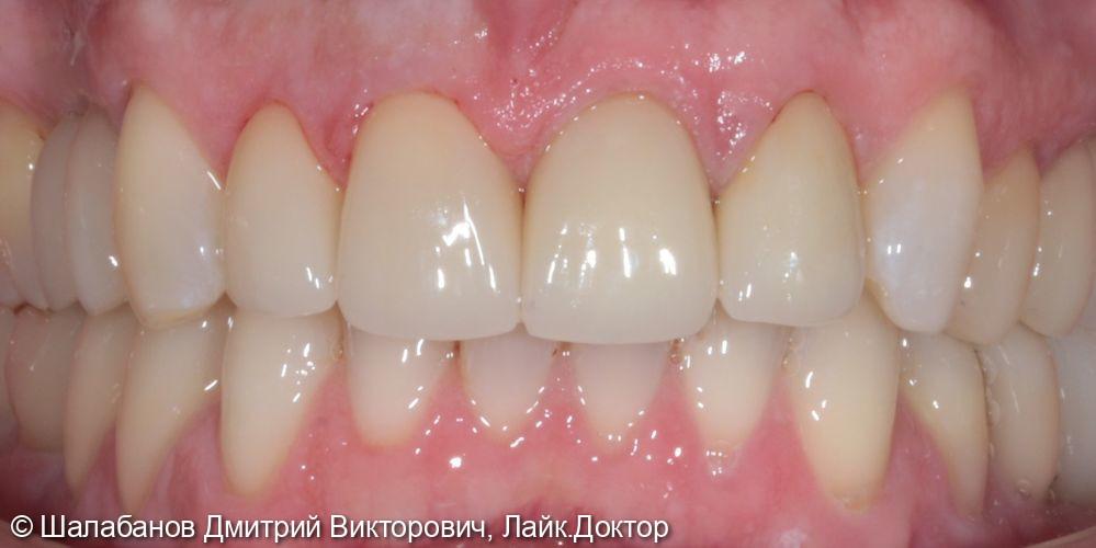 Восстановление зубного ряда при значительной потере зубов - фото №7