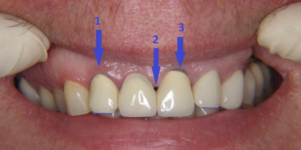 Замена металлокерамических коронок на линии улыбки - фото №1