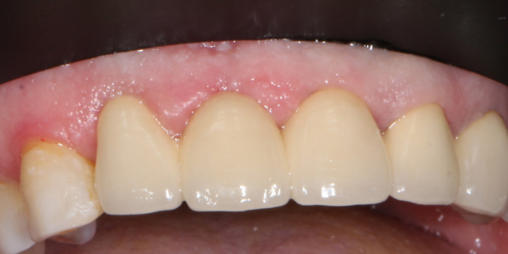 Замена металлокерамических коронок на линии улыбки - фото №5