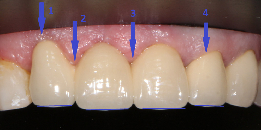 Замена металлокерамических коронок на линии улыбки - фото №2