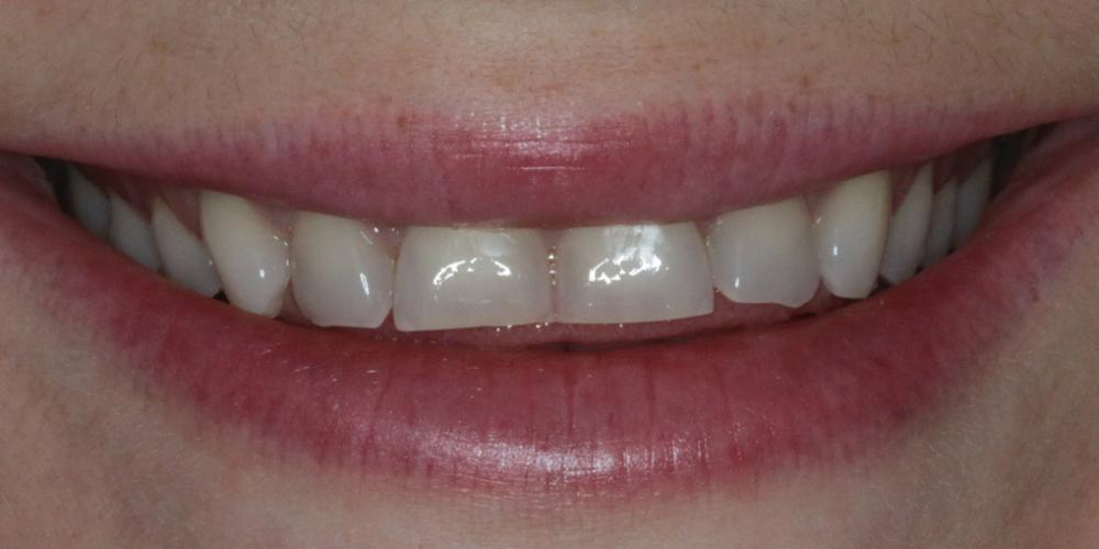 Голливудская улыбка с помощью керамических виниров - фото №1