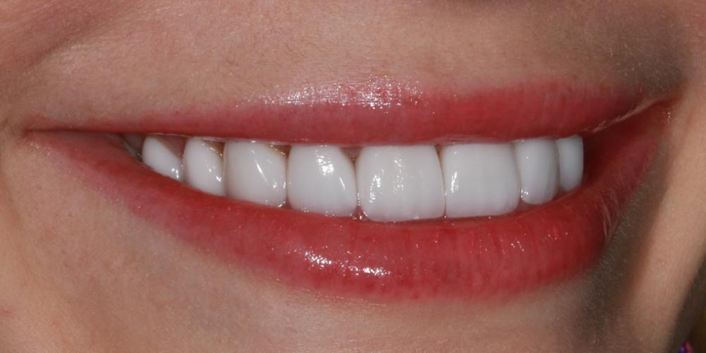 Голливудская улыбка с помощью керамических виниров - фото №4