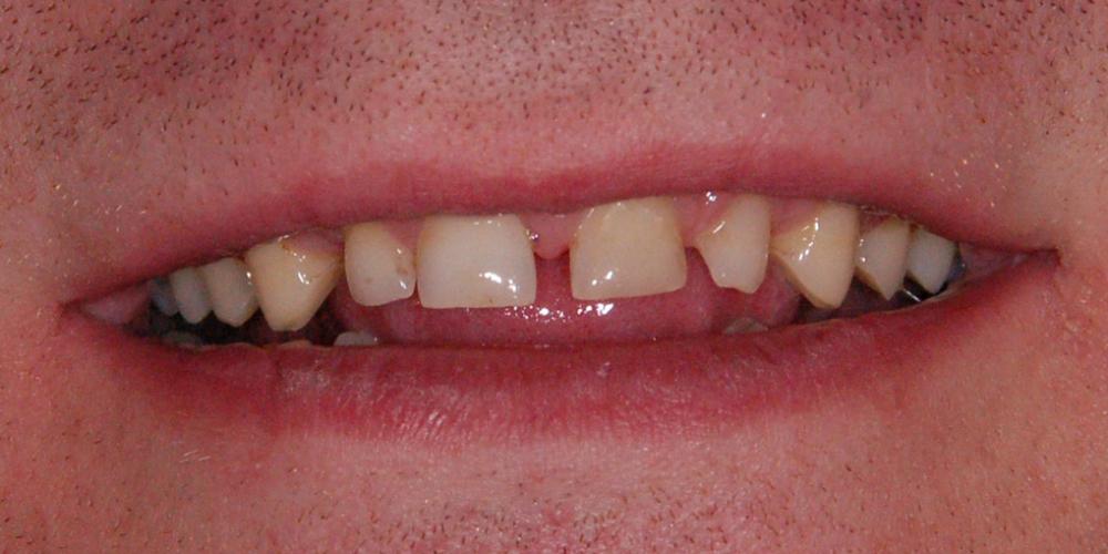 Восстановление зоны улыбки винирами empress e-max - фото №1
