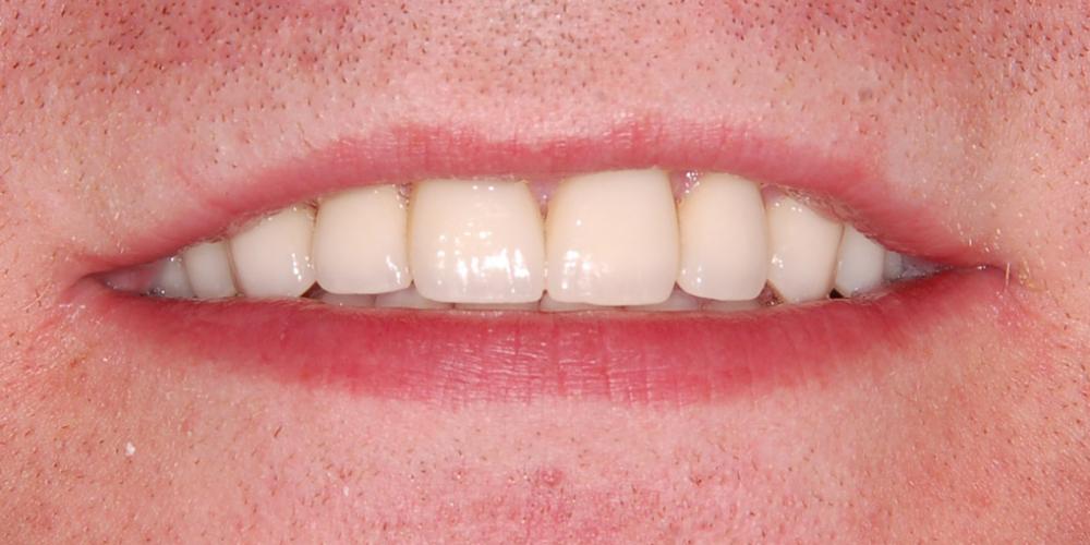 Восстановление зоны улыбки винирами empress e-max - фото №4