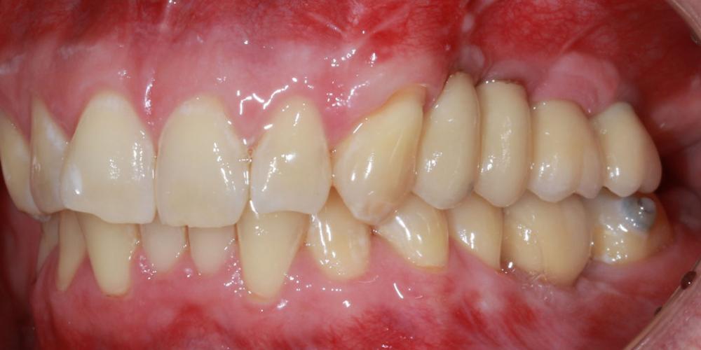 Отсутствие зубов в течение длительного времени, затрудненное пережевывание пищи, эстетический дефект - фото №2