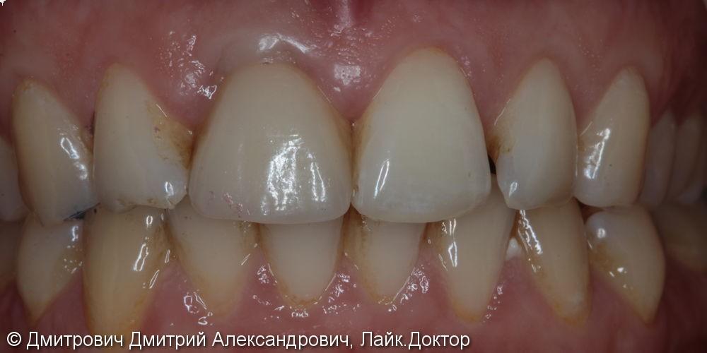 Одномоментная имплантация Astra Tech переднего зуба - фото №5