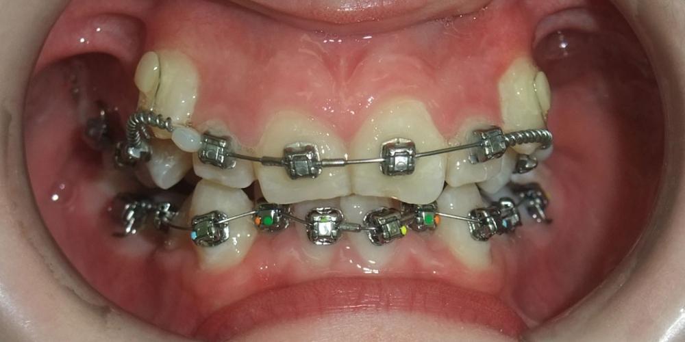 Исправление скрученного положения зубов верхнего и нижнего зубного ряда - фото №1