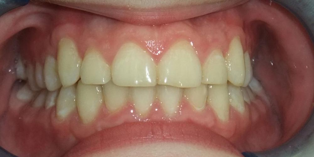 Исправление скрученного положения зубов верхнего и нижнего зубного ряда - фото №2