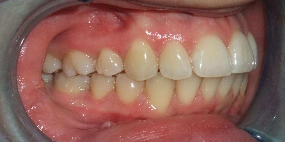 Результат исправления прикуса с помощью лингвальной брекет-системы на верхней челюсти - фото №3