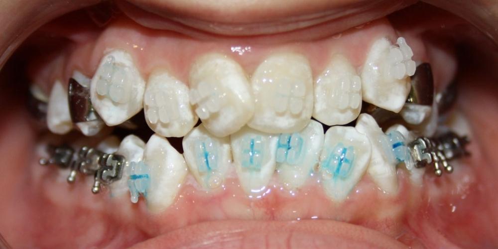 Исправление прикуса зубов у ребенка 12 лет - фото №1