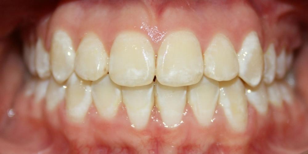 Исправление прикуса зубов у ребенка 12 лет - фото №2
