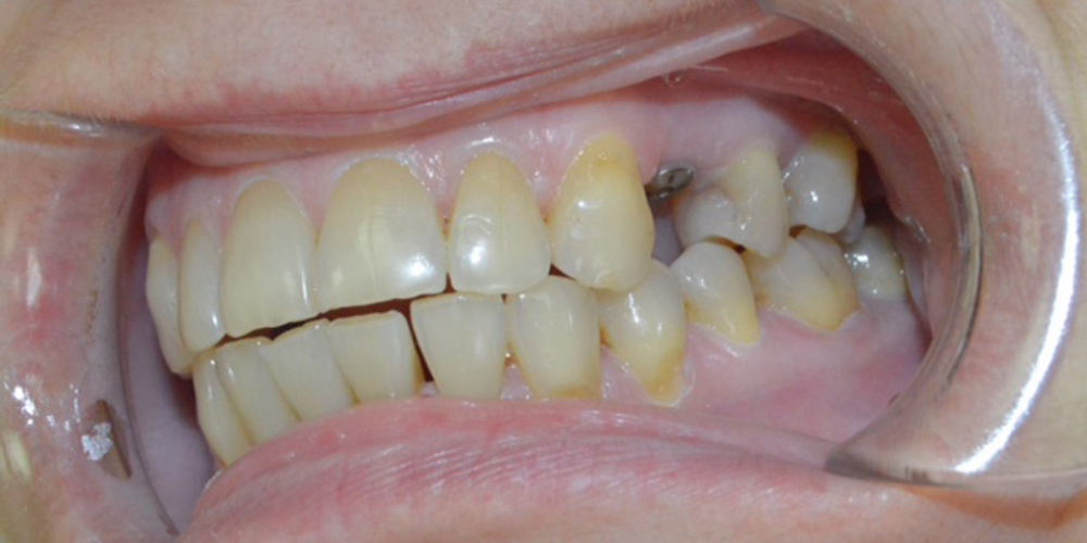 Удаление зуба с одномоментной имплантацией Астра Тек - фото №1