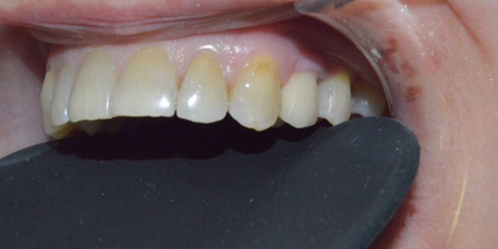 Удаление зуба с одномоментной имплантацией Астра Тек - фото №2