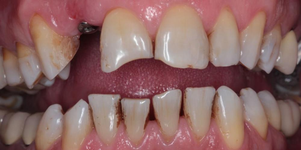 Эстетическая реабилитация зоны улыбки керамическими винирами, имплантация - фото №1