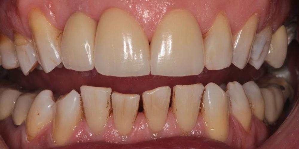 Эстетическая реабилитация зоны улыбки керамическими винирами, имплантация - фото №2