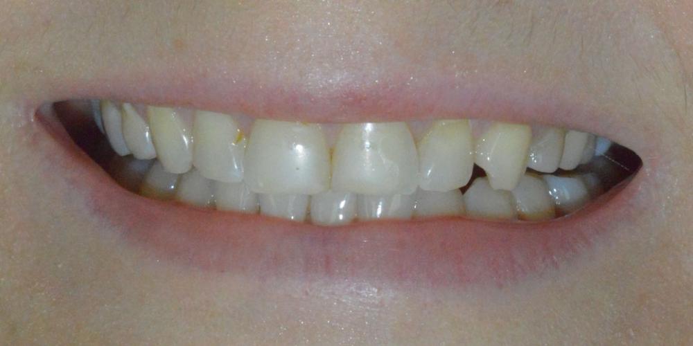 Преображение улыбки керамическими винирами Emax - фото №1