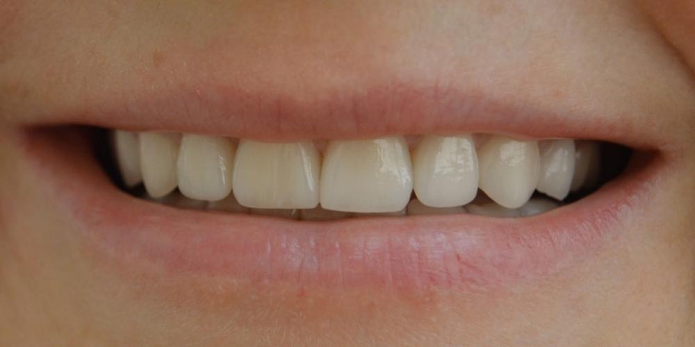 Преображение улыбки керамическими винирами Emax - фото №2