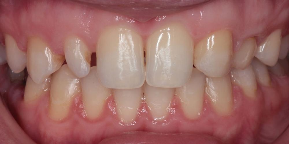 Шипковидный зуб в зоне улыбки, исправление винирами - фото №1