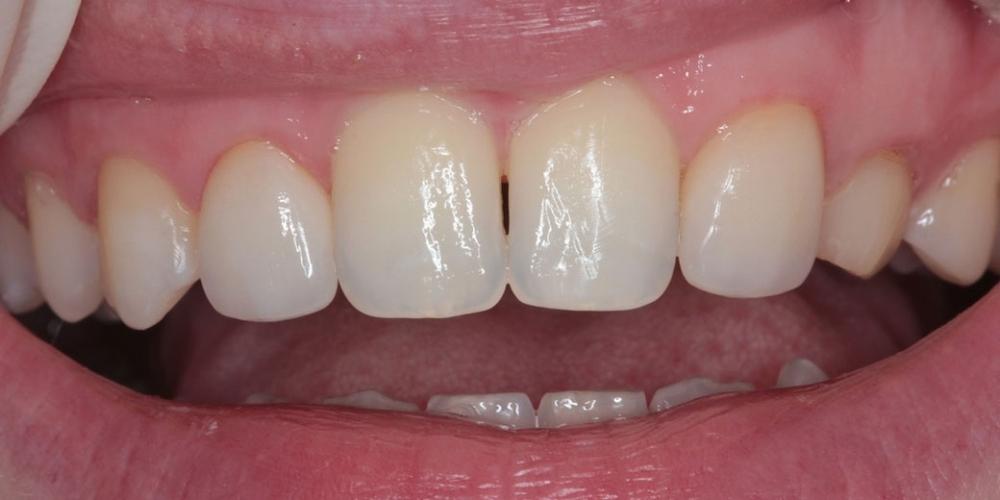 Шипковидный зуб в зоне улыбки, исправление винирами - фото №2