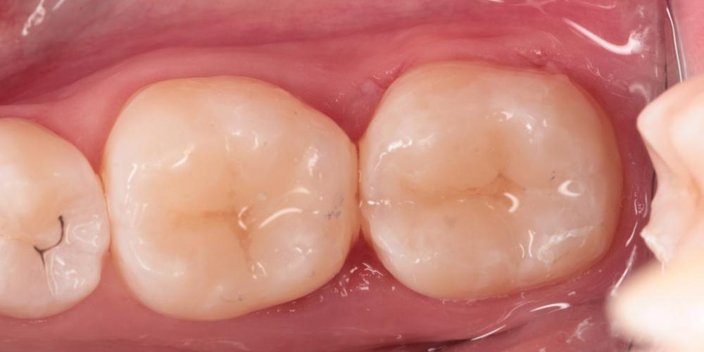 Художественная реставрация жевательных зубов японским сфеерическим гибридным композитом - фото №2