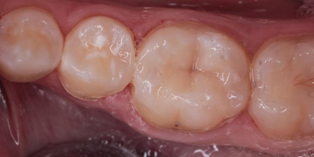 Художественная реставрация, замена старой пломбы на жевательном зубе - фото №2